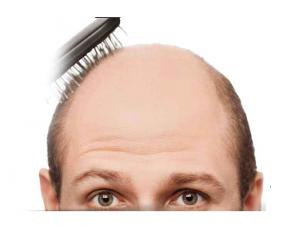 Asami- ingredientes - funciona - como tomar - cabelo