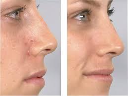 DermaSuction - preço