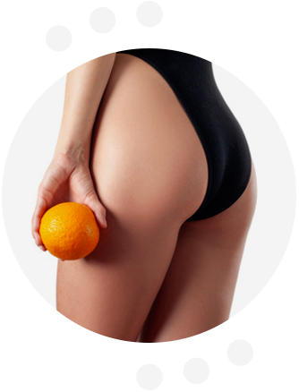 Perfect Body Cellulite - farmacia - celeiro